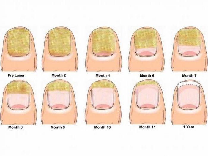 Лечение грибка ногтей, рук и кожи
