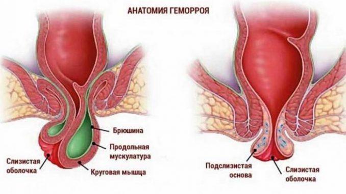 Геморрой - причины и симптомы, типы, лечение